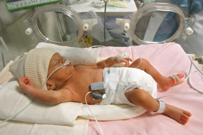 Заболевание легких у новорожденного
