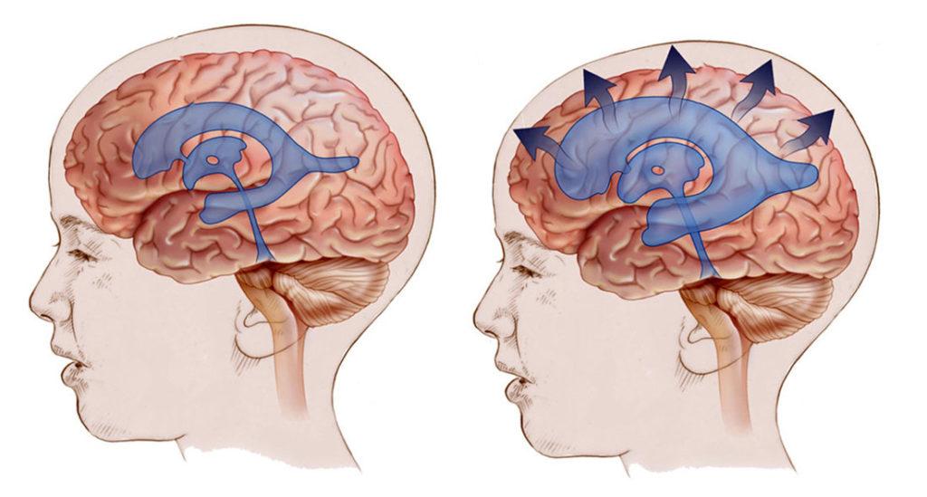 Гидроцефалия головного мозга и нормальное состояние