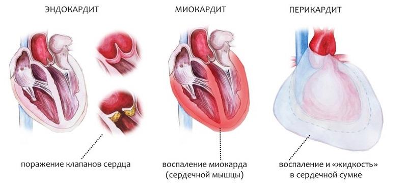Сравнение болезней