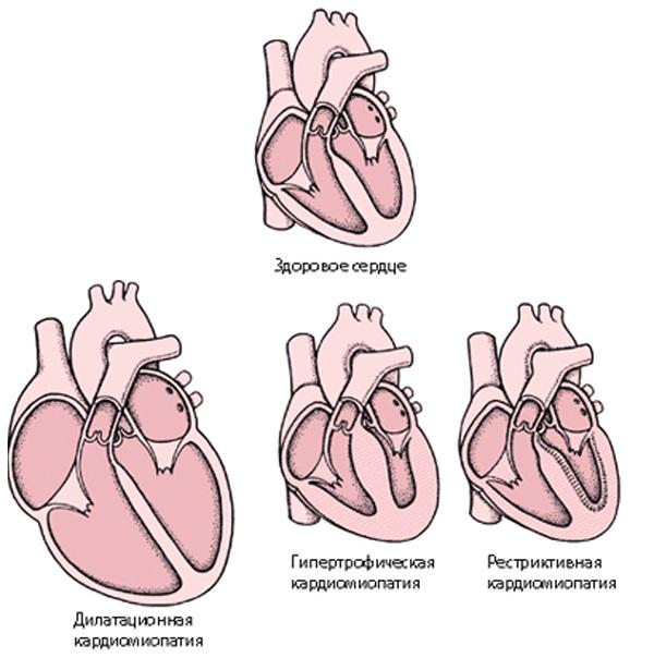 различия между здоровым сердцем и кардиопатией у ребенка