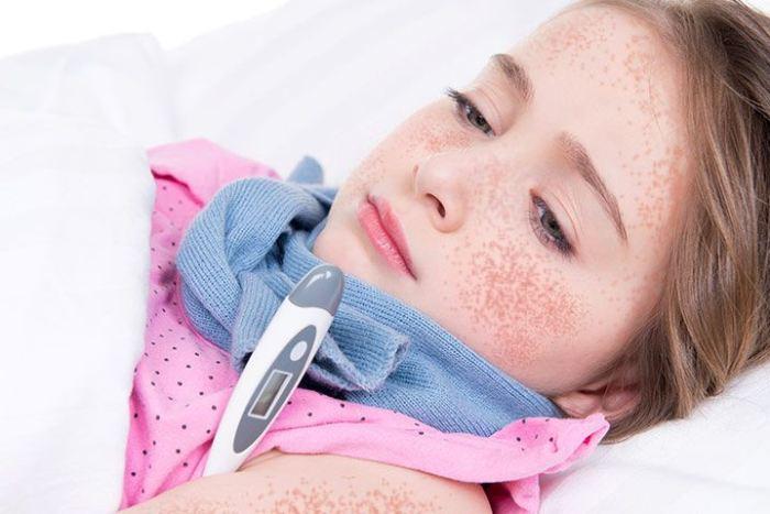 Появление красной сыпи при лихорадке