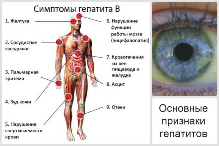 Перечень симптомов при гепатите В