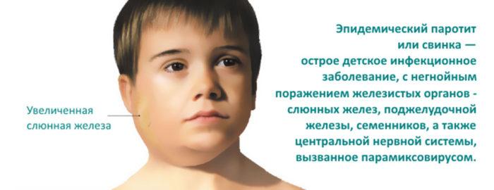Признак паротита у ребенка на фото