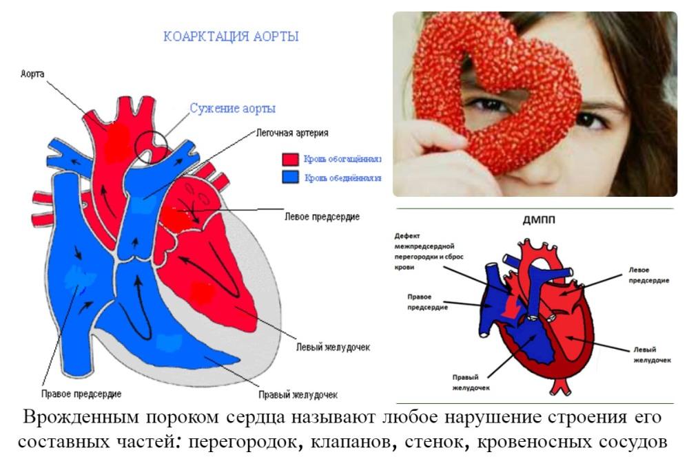 Врожденный порок сердца у ребенка