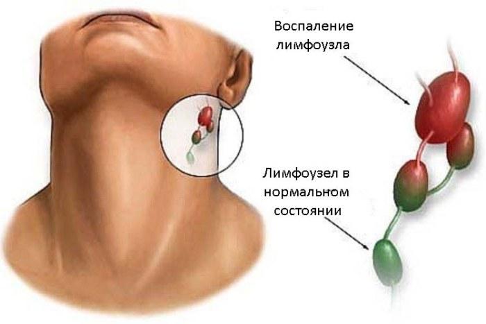 Воспаление лимфоузла и лимфоузел в нормальном состоянии