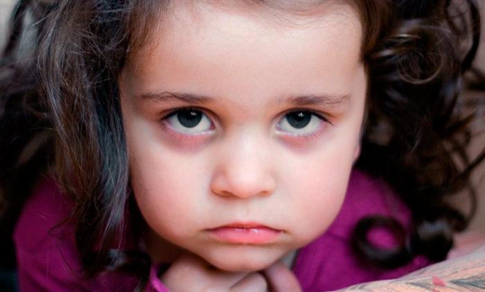 Девочка с синяками под глазами (темными кругами)