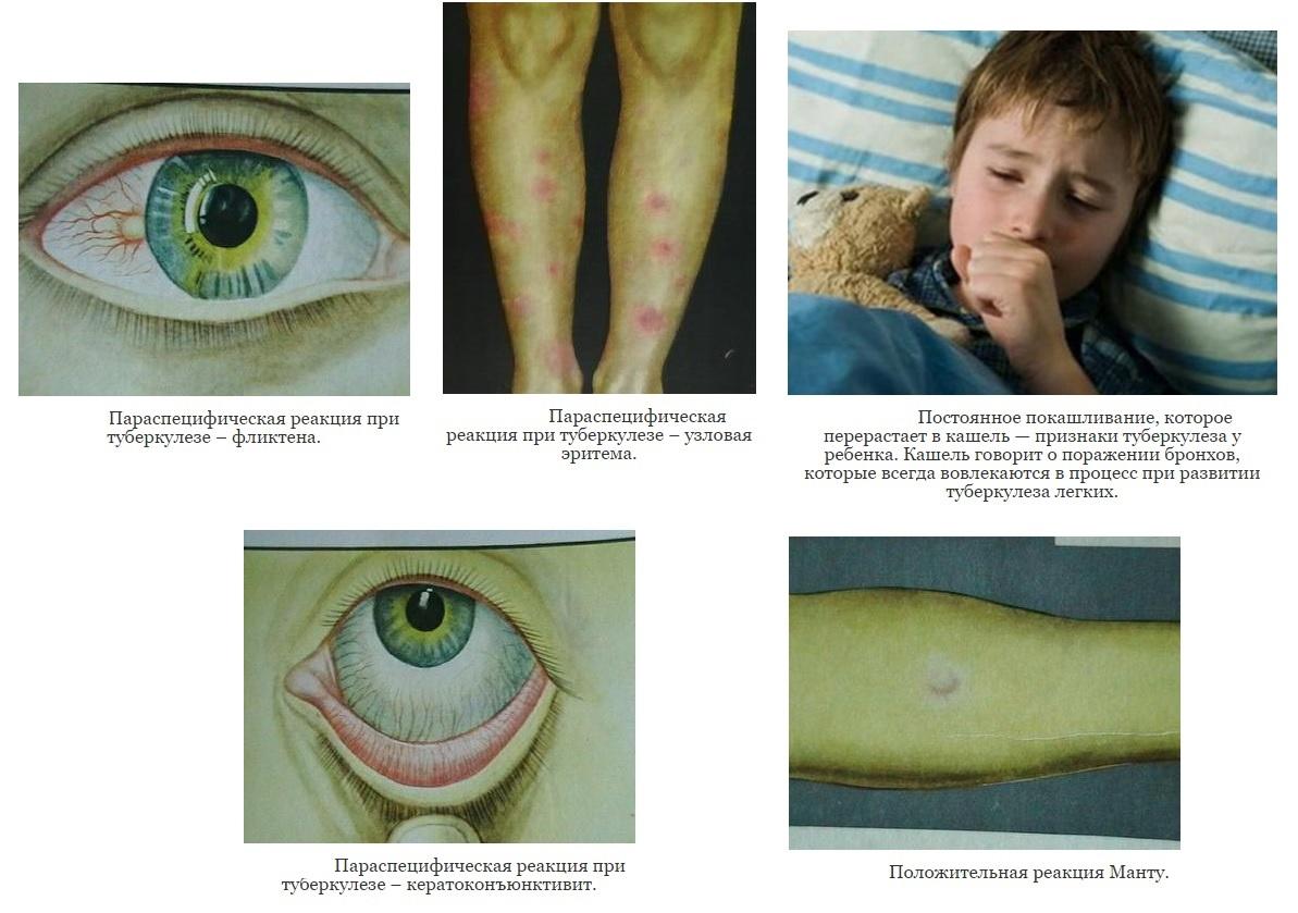 Симптомы туберкулеза у детей  в картинках