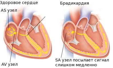 Здоровое сердце и сердце с брадикардией