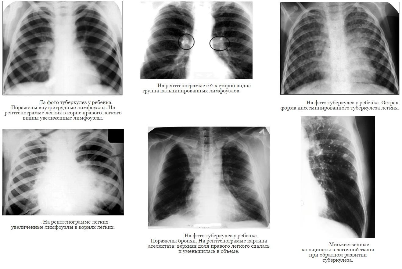 Рентген-фото туберкулеза у детей