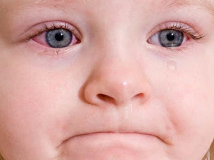 конъюнктивит у малыша
