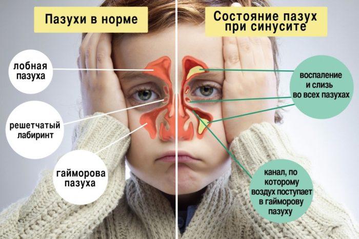 состояние пазух при болезни