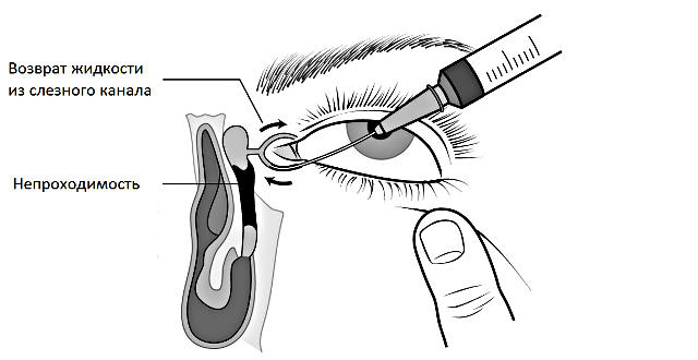Как проводится зондирование слезног оканала