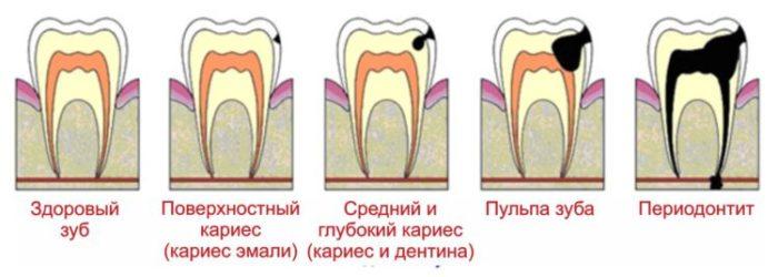 Стадии заболевания зуба