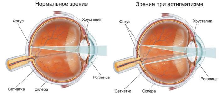 Отличия в зрении при дефекте и нормальном зрении