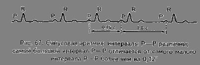проявление синусовой аритмии