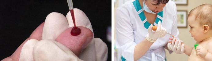 проба крови у ребенка