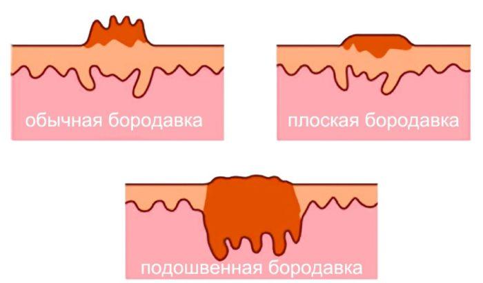 Формы бородавок