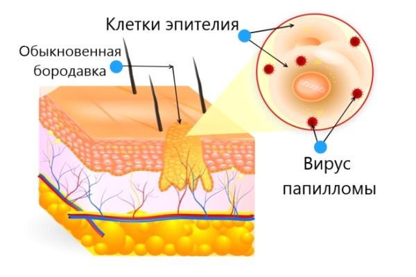 Схема вируса папилломы