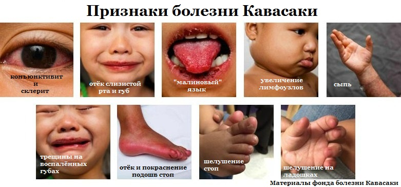 кавасаки, синдром кавасаки, болезнь кавасаки, конъюнктивит, склерит, кавасаки у детей, малиновый язык, шелушение кожи, лимфаденит, лимфоузлы, болезнь, ребёнок заболел