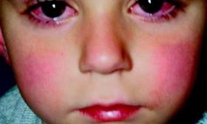 синдром Кавасаки, Кавасаки у ребёнка, синдром Кавасаки у детей, красные глаза, сыпь у детей, осложнения коронавирусной инфекции, болезнь Кавасаки