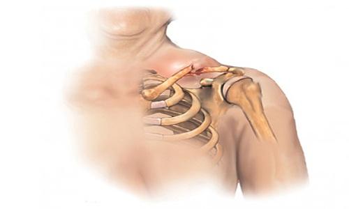 Перелом ключицы у детей и перелом руки: симптомы, лечение