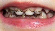 Камни на зубах у ребенка фото