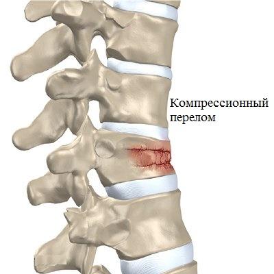 Болит шея позвоночник при повороте головы