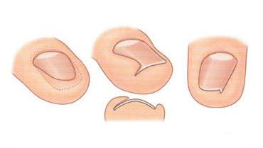 Мазь тербинафин грибок ногтей на ногах