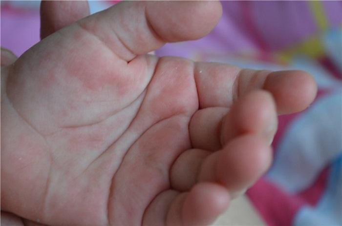 Как лечить энтеровирусную инфекцию у детей 31