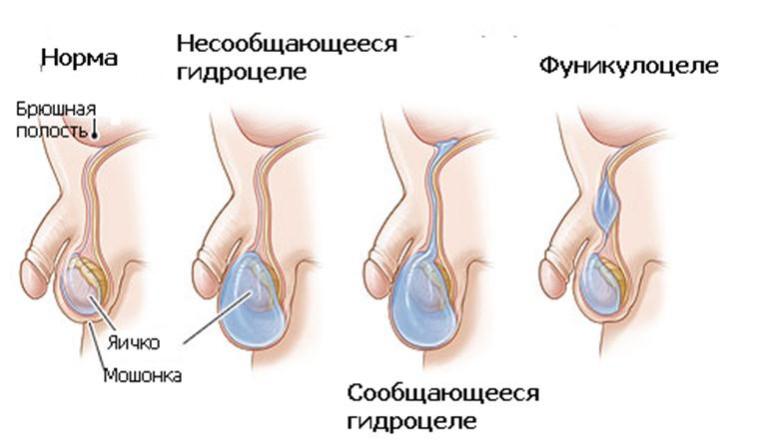 masturbatsiya-posle-operatsii-po-vodyanke-yaichka