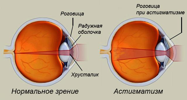Упражнения бейтса по восстановлению зрения