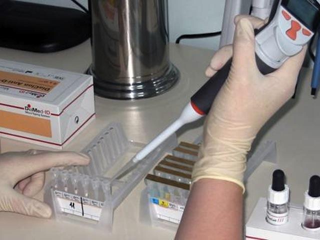 Как сделать соскоб с ногтями 141