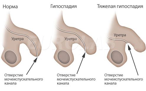 как увеличить размер мужского члена Жуковка