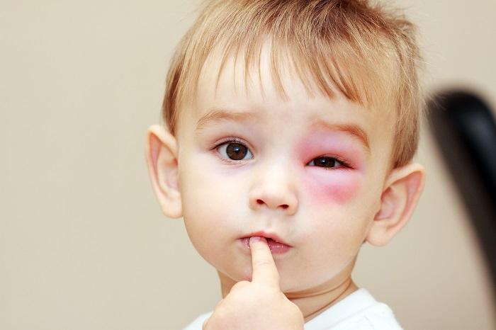 У ребенка отечные глаза