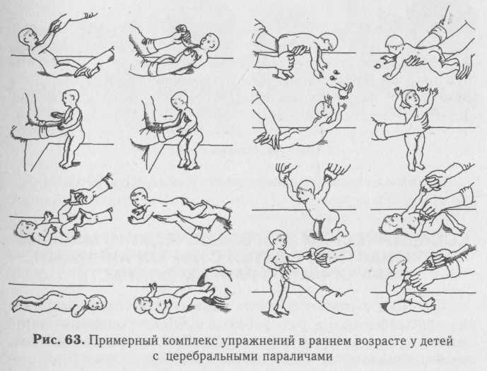 ЛФК и упражнения при дцп